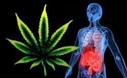 http://www.cannabisculture.com/files/images/Ulcerative-Colitis.img_assist_custom-250x155.jpg