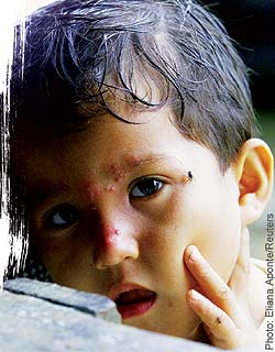 A 5-year-old Colombian boy shows blisters on his face caused by herbicide spray.